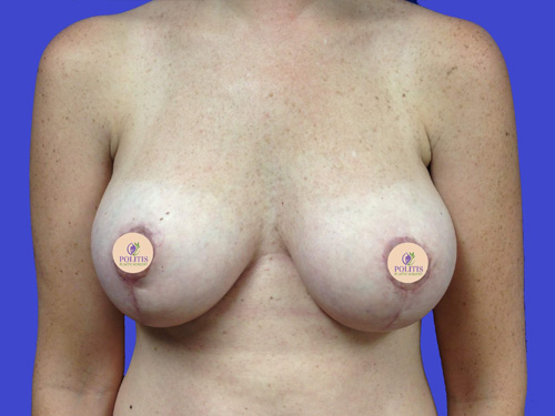 Breast Augmentation Mastopexy: After