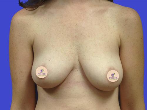 Breast Augmentation Mastopexy: Before