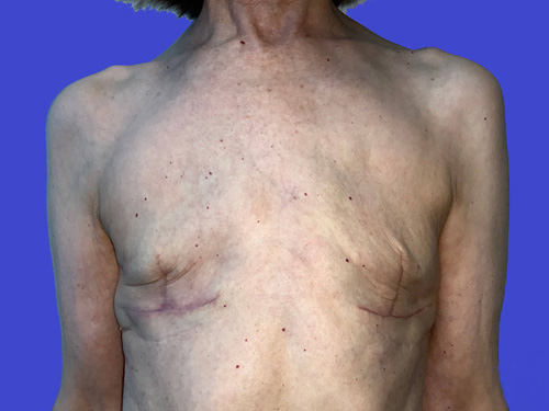 Breast Reconstruction Explant: After