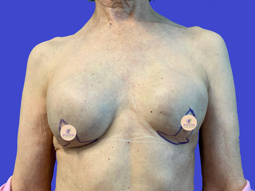 Breast Reconstruction Explant: Before