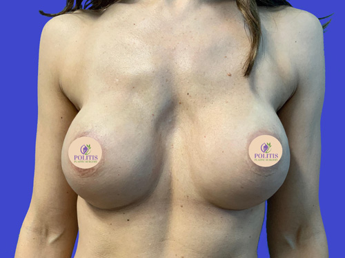 Direct-to-Implant Breast Reconstruction #1: After