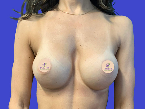 Direct-to-Implant Breast Reconstruction #1: Before