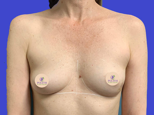 Direct-to-Implant Breast Reconstruction #2: Before