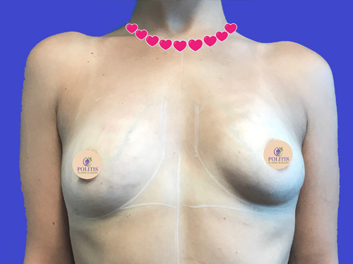 Direct-to-Implant Breast Reconstruction #3: Before