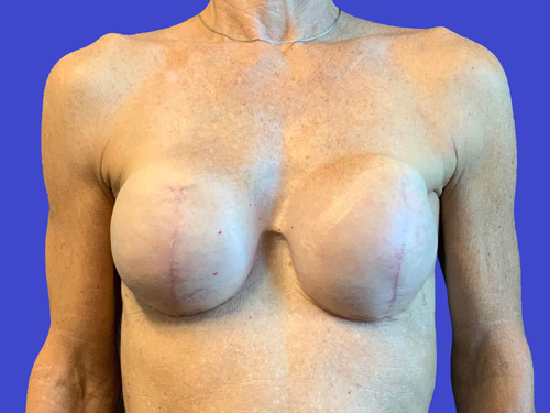 Breast Reconstruction – Expander to Implant #1: After