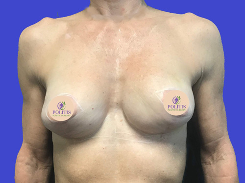Breast Reconstruction – Expander to Implant #1: Before