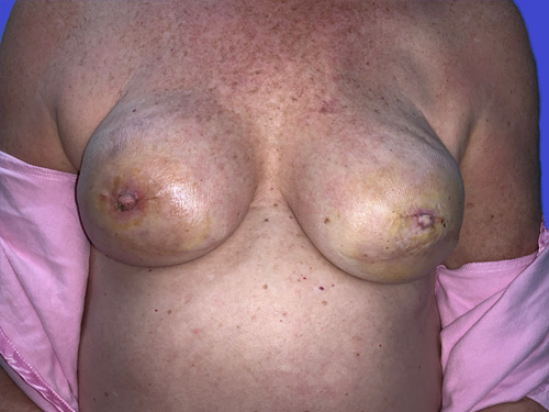 Breast Reconstruction - Explant to Implant w/ Nipple Reconstruction: After