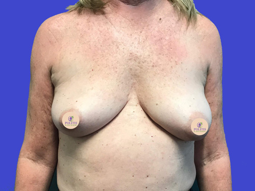 Breast Reconstruction - Explant to Implant w/ Nipple Reconstruction: Before