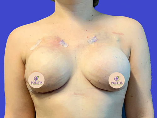 Breast Reconstruction – Expander to Implant #2: After