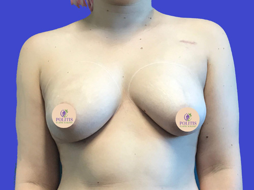 Breast Reconstruction – Expander to Implant #2: Before