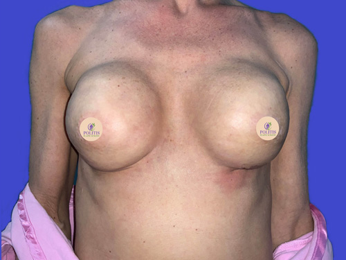 Breast Reconstruction – Expander to Implant #3: After