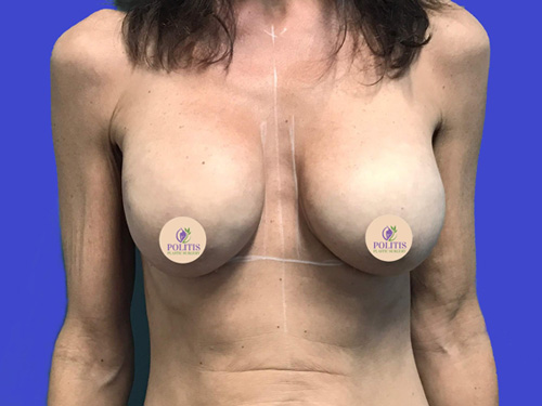 Breast Reconstruction – Expander to Implant #3 - Before