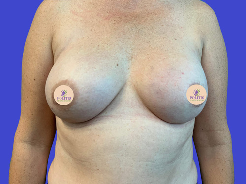 Breast Reconstruction Revision: After