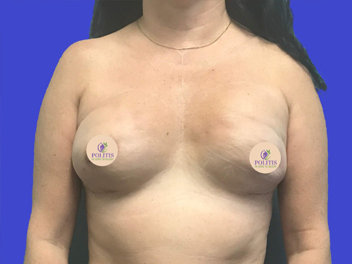 Breast Reconstruction Revision: Before