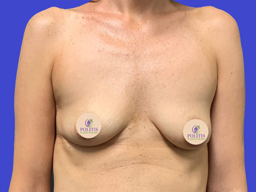 Breast Augmentation: Before