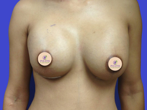 Breast Augmentation 2: After