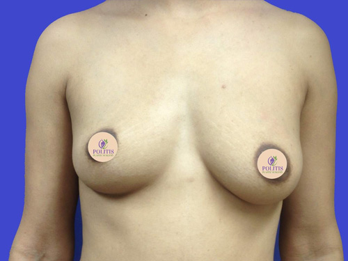 Breast Augmentation #2: Before