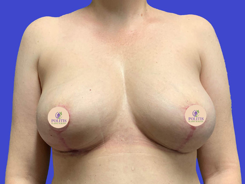 Breast Explant w/ Life: After
