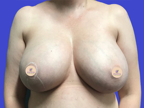 Breast Explant w/ Life: Before