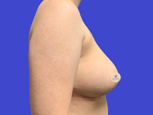 Breast Explant w/ Life (Sideview): After