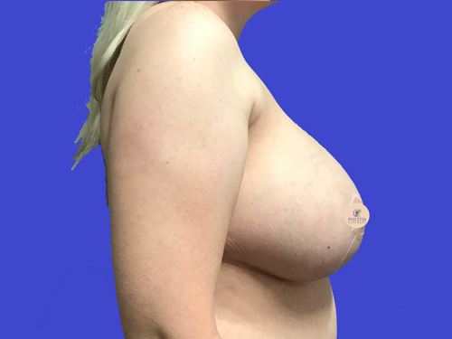 Breast Explant w/ Life (Sideview) - After