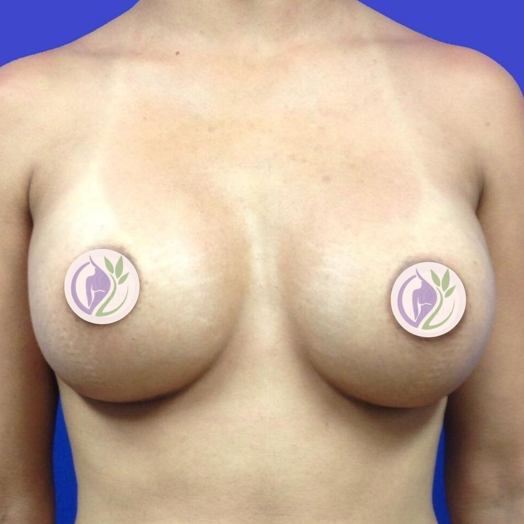 Breast Augmentation: After