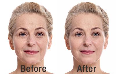 Plastic Surgery Benefits