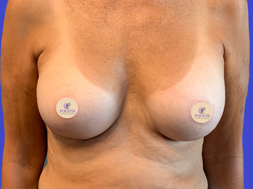 Breast Augmentation 2 - After