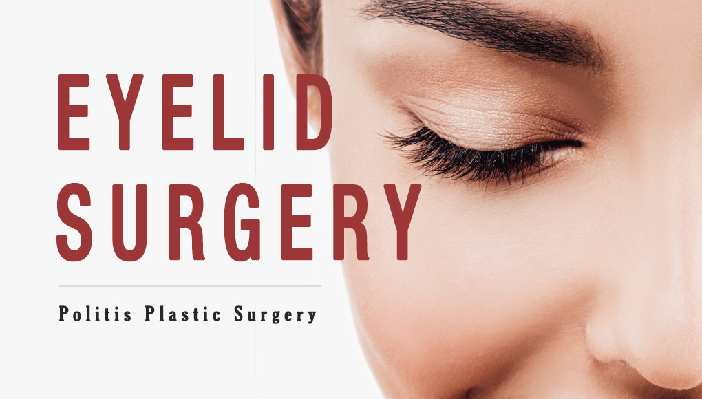 What is Eyelid Surgery