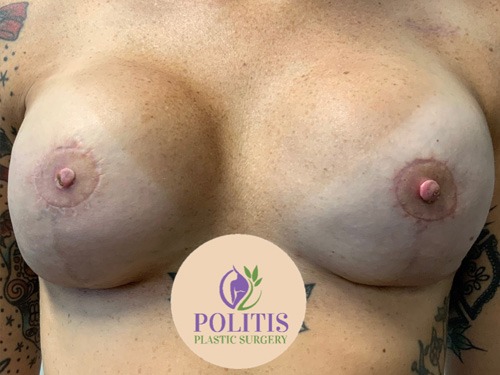 Nipple Areolar Reconstruction - After