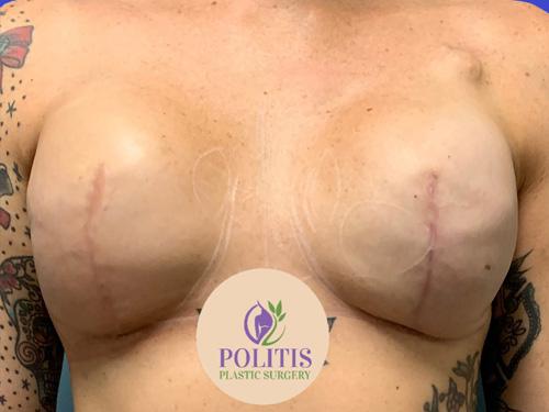 Nipple Areolar Reconstruction - Before