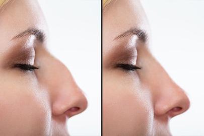 Ba Nose