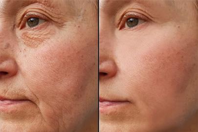 Ba Wrinkles 2