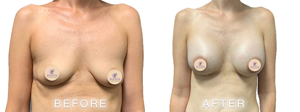 Breast Aug Before After 1 New