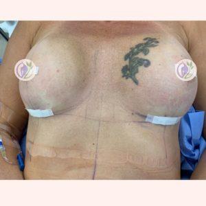 Corrective Surgery
