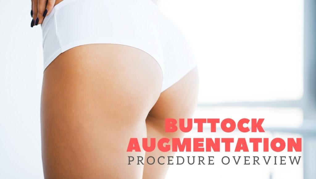 Buttock Augmentation Procedure Overview 1024x580