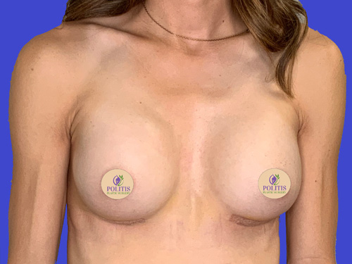 Breast Aug Primary After 2