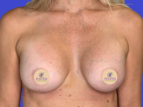 Breast Aug Primary After