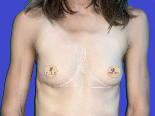 Breast Aug Primary Before 2