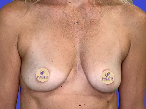 Breast Aug Primary Before
