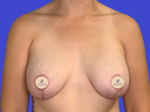 Breast Augmentation Mastopexy After
