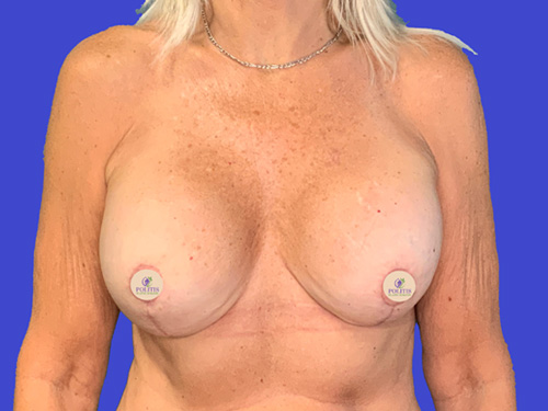 Breast Implant Exchange Mastopexy After