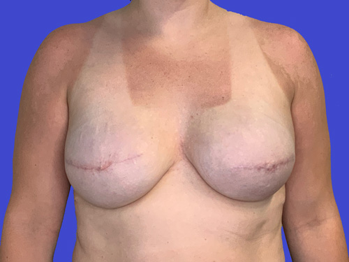 Breast Reconstruction Plane Change After
