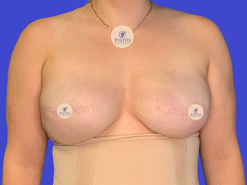 Breast Reconstruction Plane Change Before