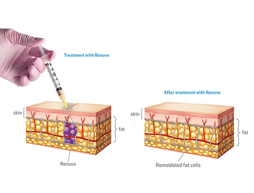 Renuva Treatment