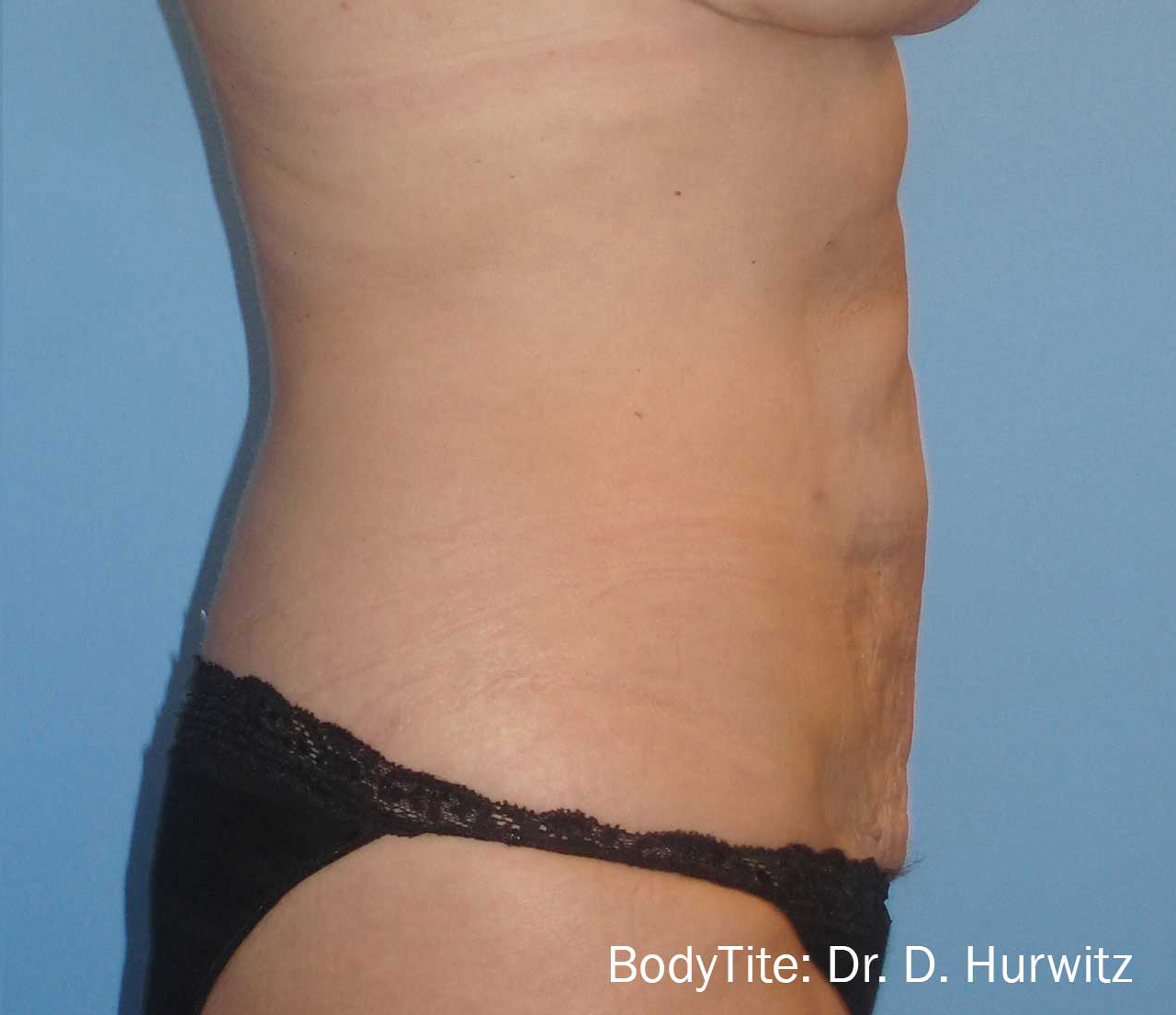 bodytite-dh2-after