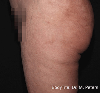 mark-peters-bodytite-after